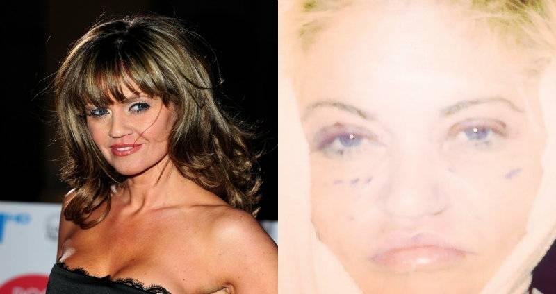 Danniella Westbrook - gwiazda brytyjskiej telewizji na operacji plastycznej w Polsce!